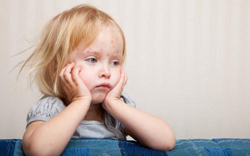 Încă 14 copii cu rujeolă internaţi în spital