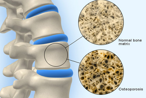 Determinări gratuite de osteodensiometrie la cabiner Dr. Coica