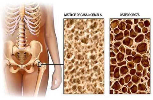 Determinări gratuite de osteodensitometrie la Cabinet dr. Coica