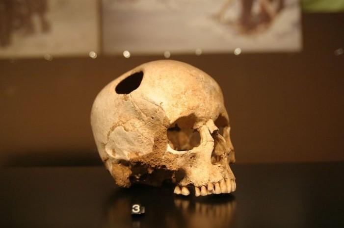 Operație pe creier făcută în Apuseni acum 4.500 de ani !