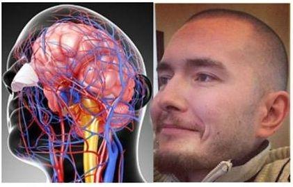 Un programator rus va fi supus unui transplant de cap