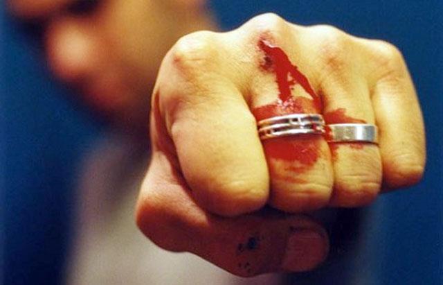 Bărbat bătut în localitatea Vama