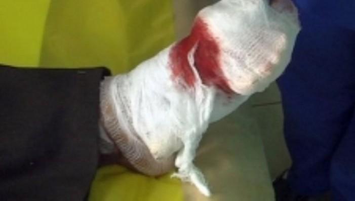 Și-a înfăşurat un ficat de porc în jurul piciorului şi a ieşit la cerşit