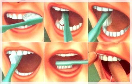 Cum să îndepărtați placa dentară fără a vizita dentistul
