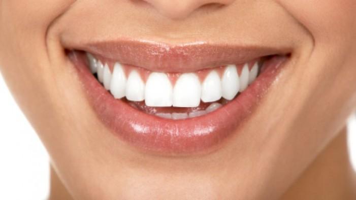 Cum să elimini petele galbene de pe dinți