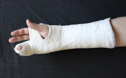 S-au bătut și i-a rupt un deget