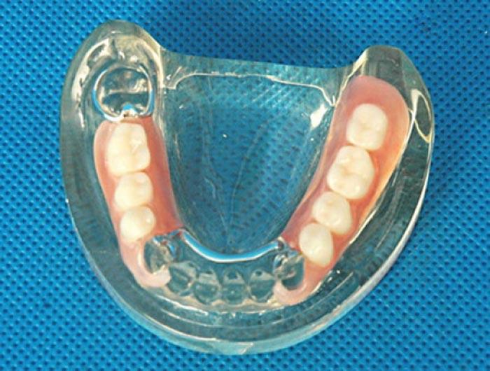 Cercetătorii au imprimat 3D maxilare, bucăţi de muşchi şi cartilaje de ureche