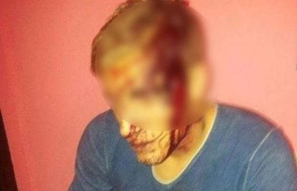 Tânăr lovit cu securea în cap, în parcarea unui supermarket
