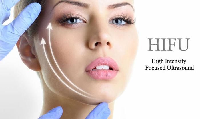 HIFU FACIAL – Tehnologie nouă non-invazivă pentru un lifting facial de durată