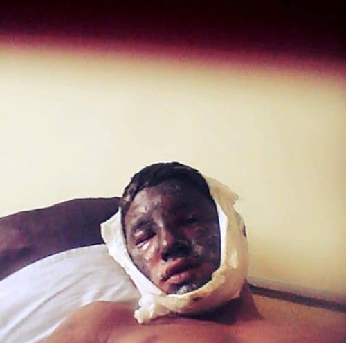 Copil ranit intr-o explozie. Are nevoie de ajutor (Foto)