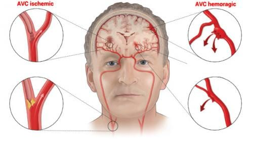 9 semne pe care corpul ni le transmite înainte de a avea un accident vascular cerebral