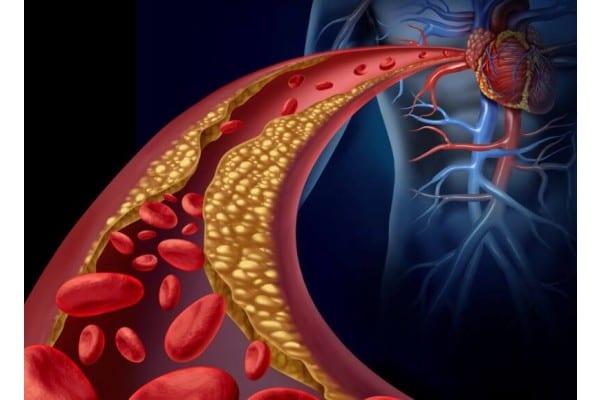 Ai probleme cu colesterolul ? Ce nu trebuie să mănânci